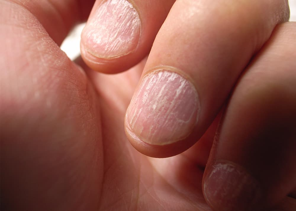 nail ridges