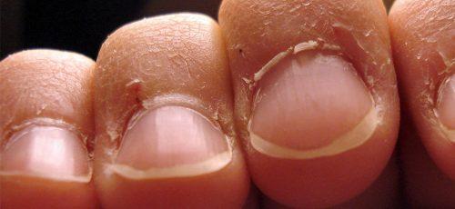 Do Cuticles Grow Back?