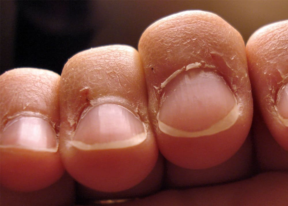 do cuticles grow back