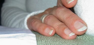 What Causes White Spot on Fingernails?