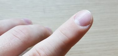 Why Are My Nails Brittle?
