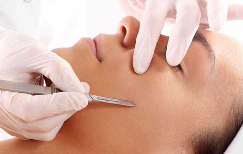 Negative Effects of Dermaplaning